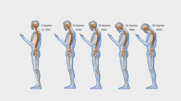 Mobile_Phones_neck_injuries